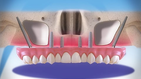 Clínica Médico Dental Pardiñas - Zygomatic implants