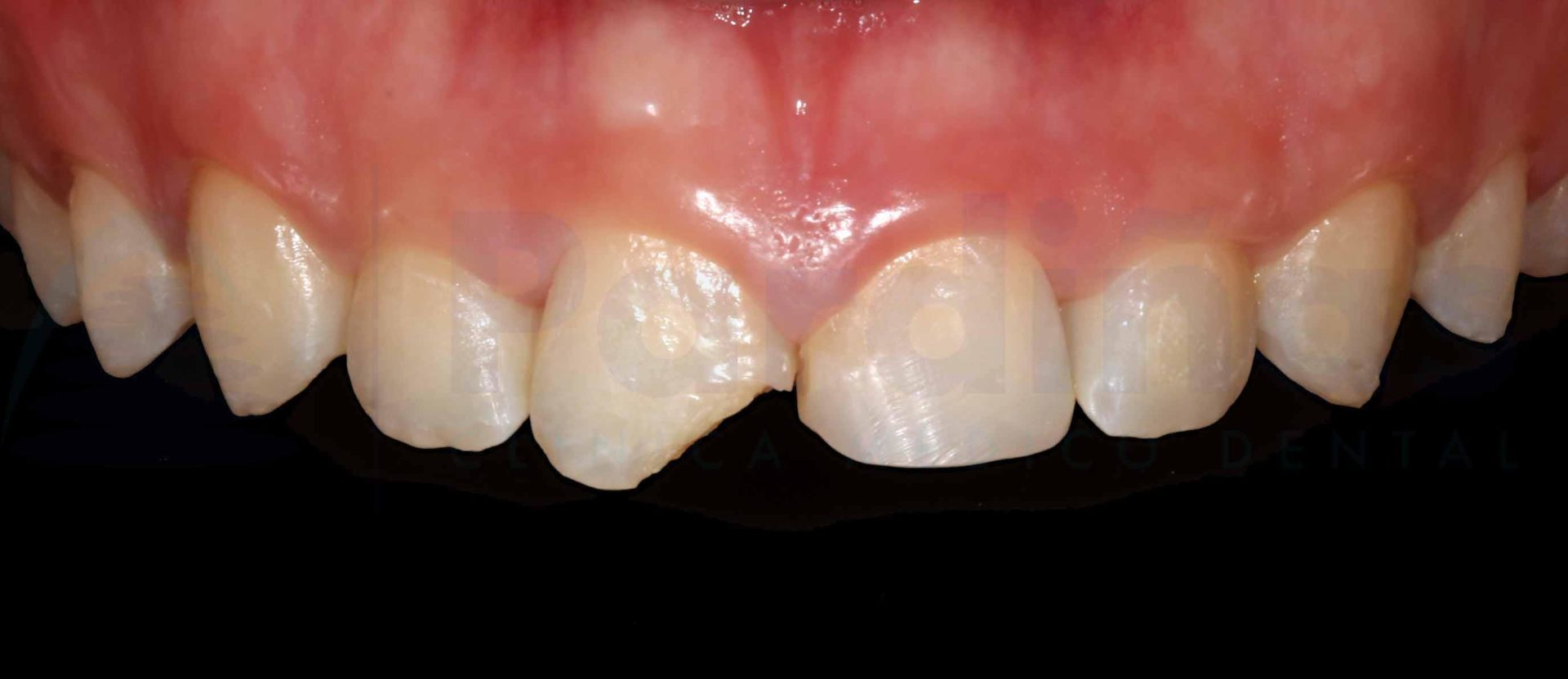 reconstruccion-diente-antes