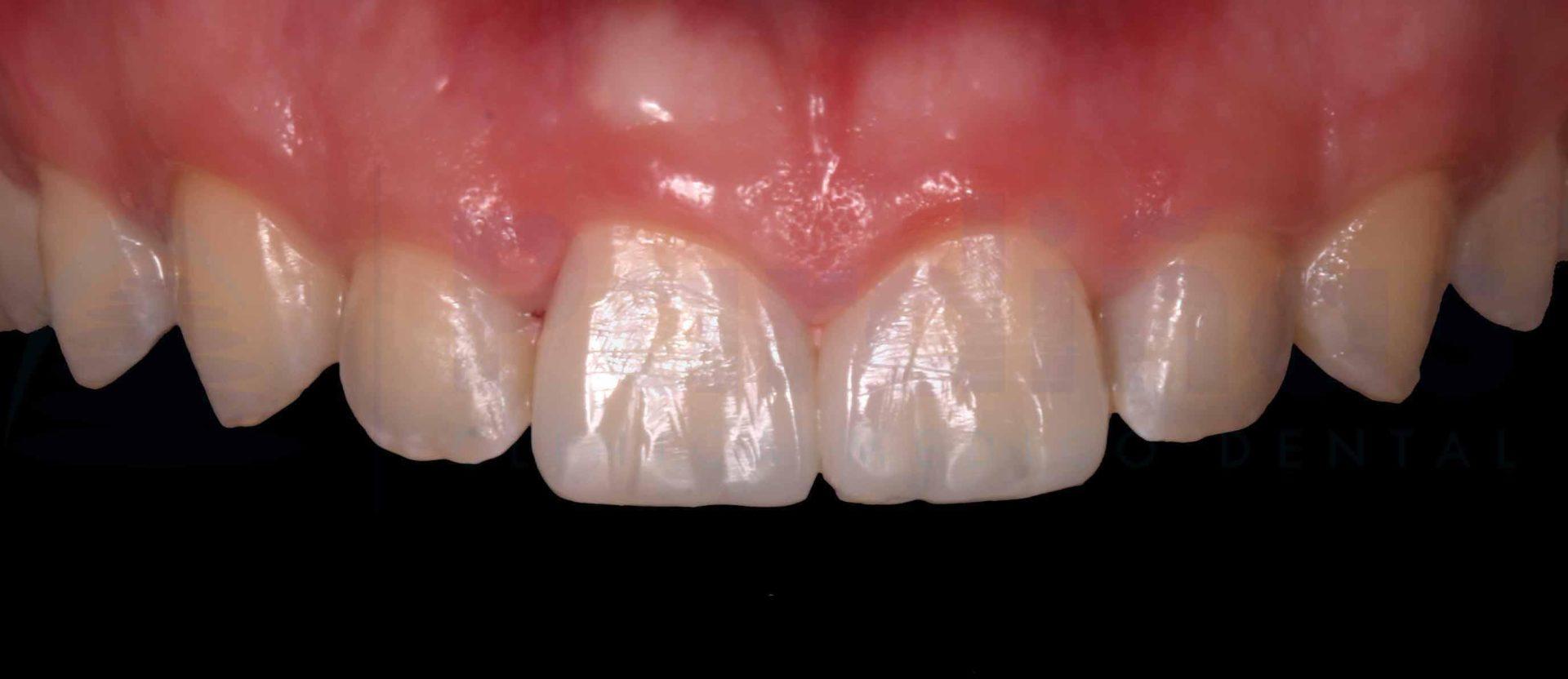 reconstruccion-diente-despues
