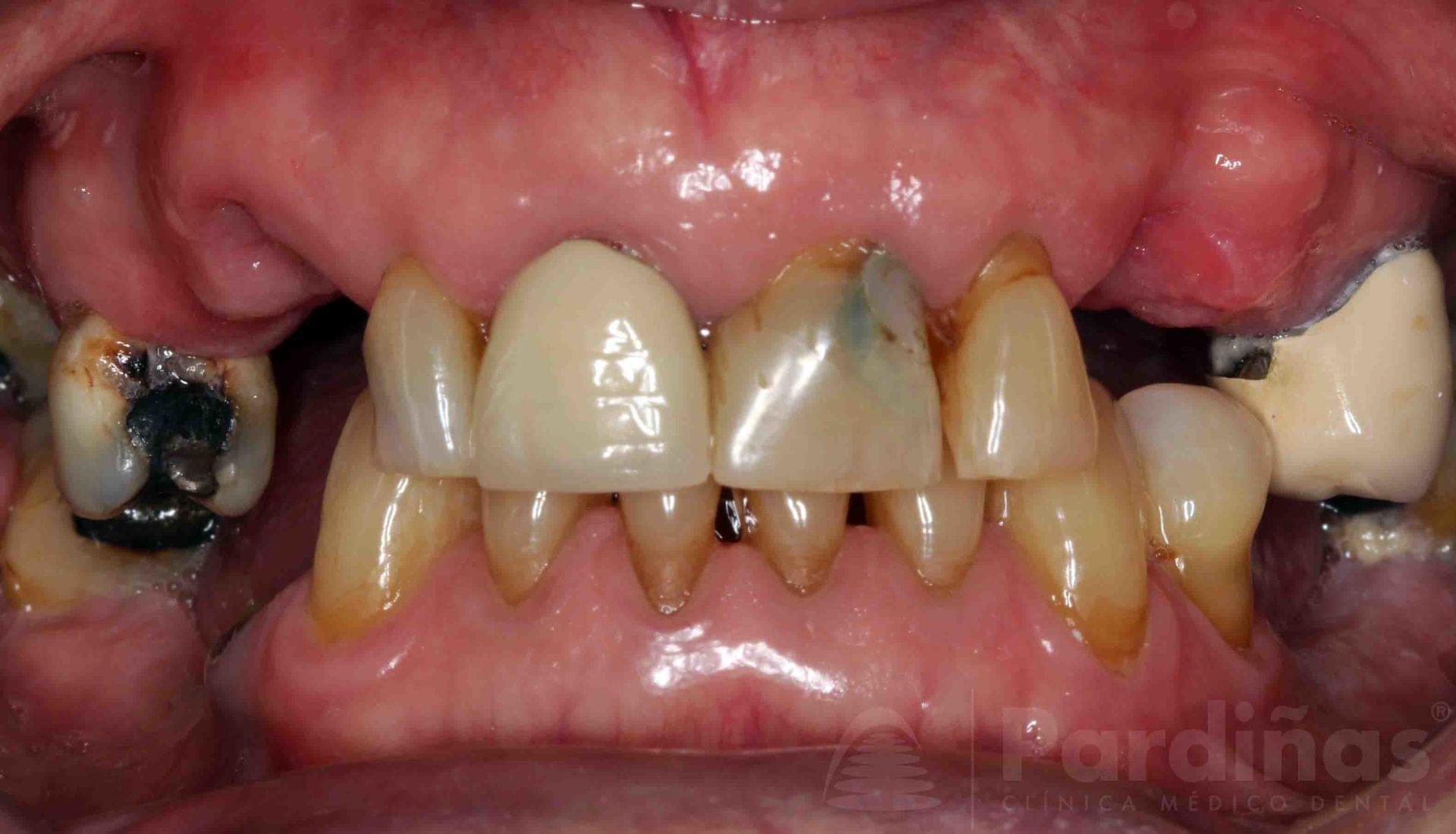 rehabilitacion-implantes-antes