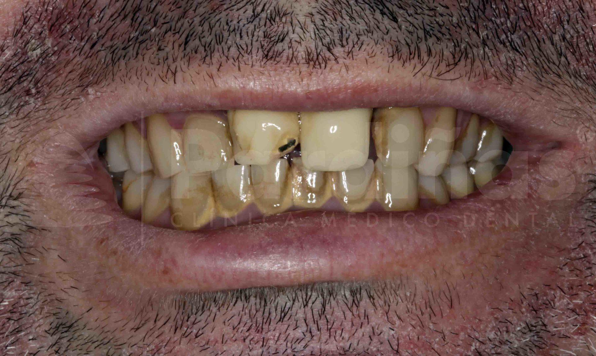 rehabilitacion-protesis-diente-natural-antes