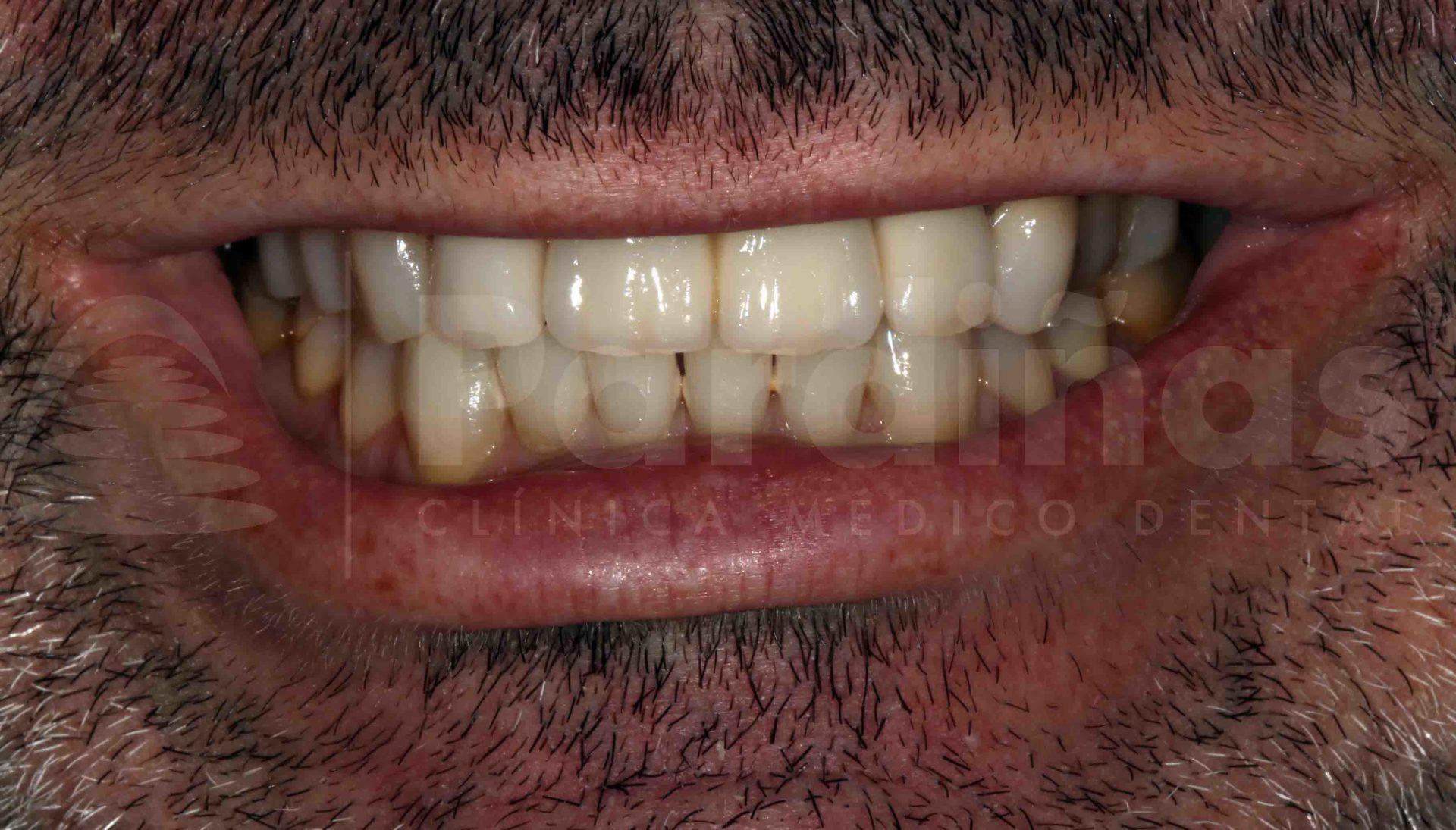 rehabilitacion-protesis-diente-natural