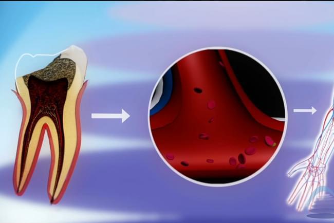 Carie dental e a súa influencia na saúde