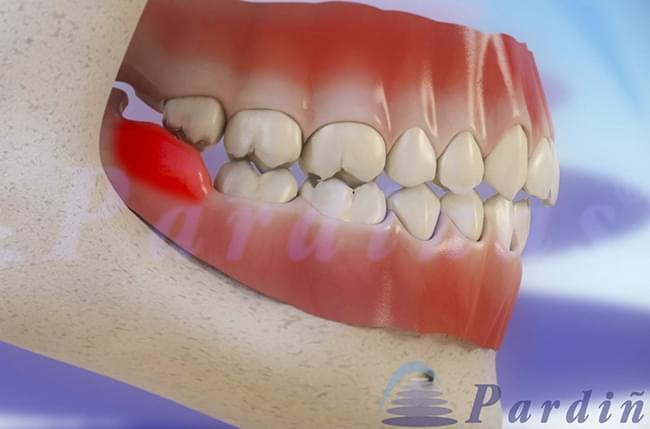 Pardiñas Dental Clinic creates 3Dentista, a website where patients and dentists can find information and 3D videos about dental diseases and treatments.