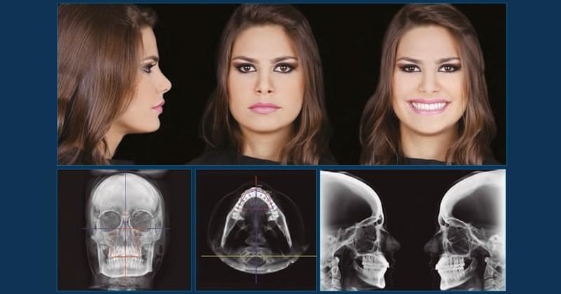 Sistemas Ertty Ortodoncia