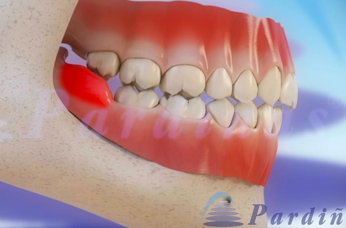 3Dentista, tratamientos y enfermedades de los dientes en vídeo 3D