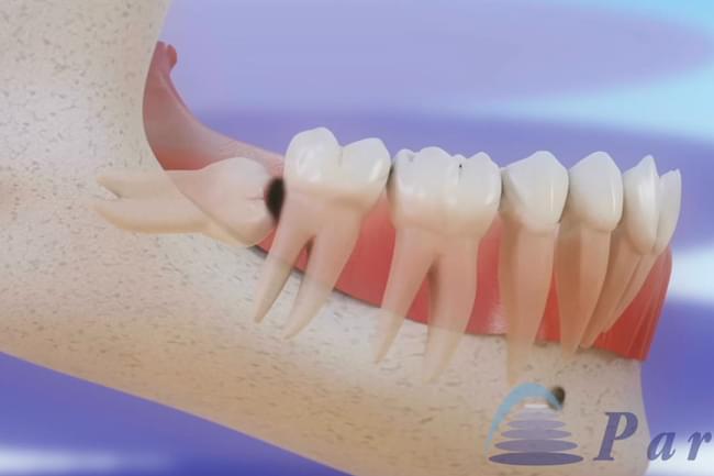 Pericoronaritis and wisdom teeth extraction