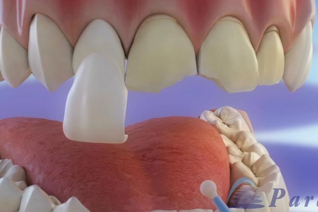 Carillas dentales: preparación y colocación de carillas
