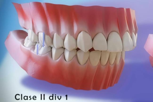 Vídeo 3d no que se explica a maloclusión e se mostran os diferentes tipos de maloclusións dentais