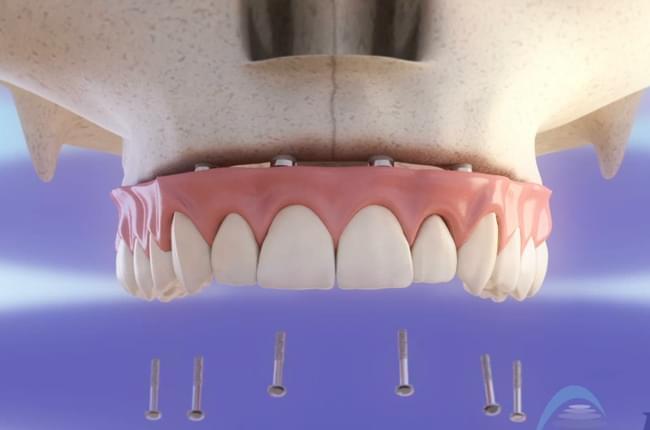 Vídeo 3d sobre el tratamiento de rehabilitación del maxilar superior realizado a partir de 6 implantes dentales