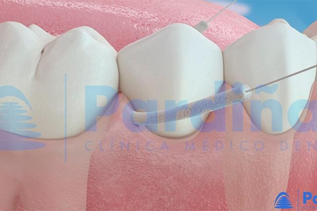 Cleaning of dental implants - Dental floss, waterjet and other methods