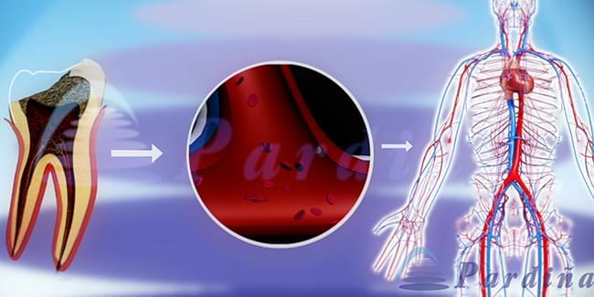 La influencia de las enfermedades de las encías en la salud