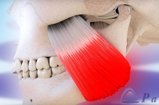 Vídeo 3D sobre la  disfunción temporomandibular, un problema en la articulación que une la mandíbula con el cráneo y que puede ser una consecuencia directa del bruxismo.