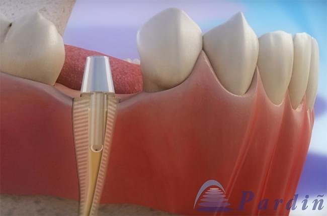 Vídeo 3D sobre a utilización do alongamento de coroa dental para restaurar un dente que sufriu unha destrución importante