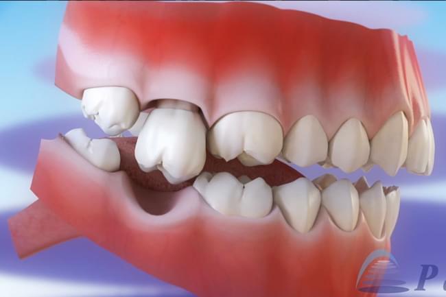 Consecuencia de non repoñer os dentes caídos