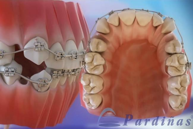 Dental extractions needed in orthodontic