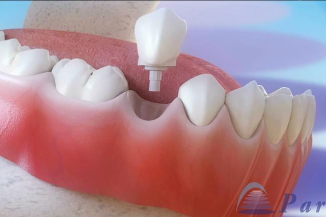 Inmediate dental implants post-extraction