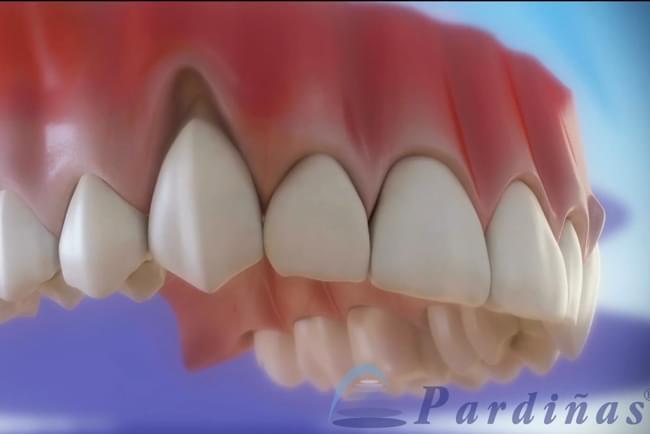 Encías retraídas. Tratamiento odontológico para la recesión de encías