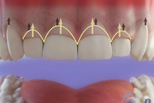 Gingivectomy, treatment of gummy smile