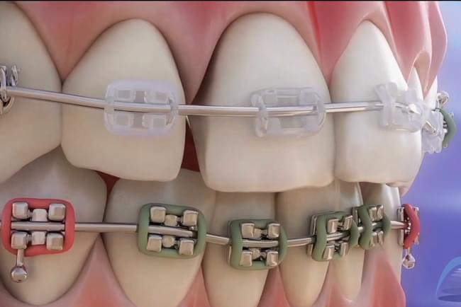 ortodoncia partes y funci n del aparato dental v deo 3d. Black Bedroom Furniture Sets. Home Design Ideas