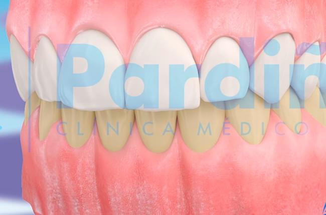 Captura 3D sobre el blanqueamiento dental