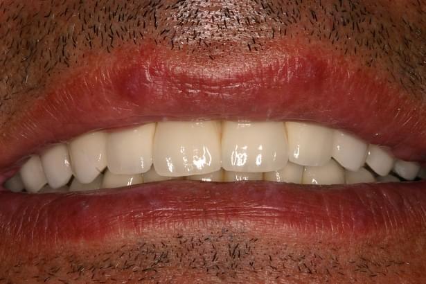 Implantes dentales, boca totalmente rehabilitada en la Clínica Pardiñas