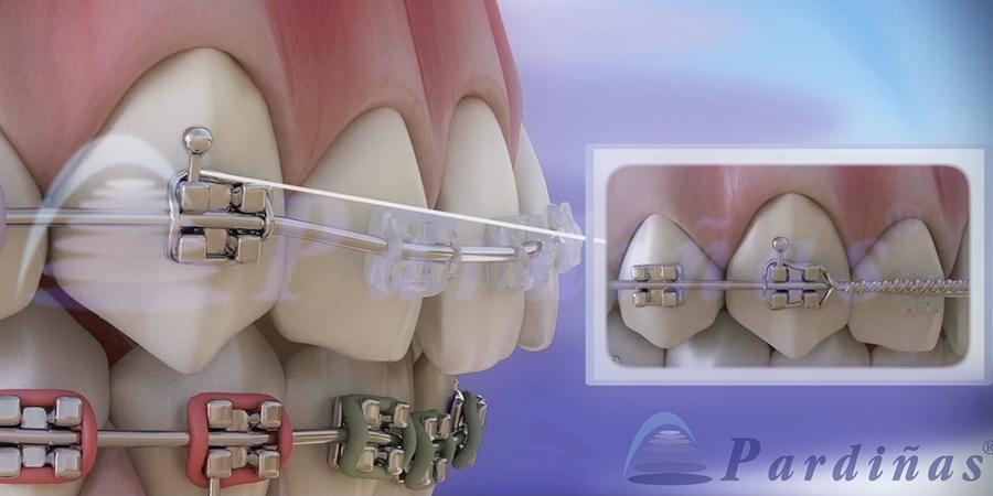 Captura de un vídeo 3D sobre la ortodoncia y el aparato dental