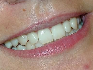 Gum disease is curable