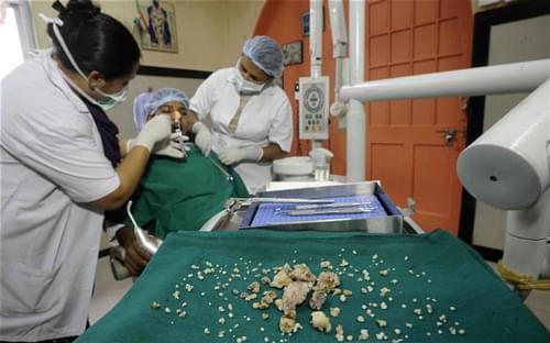 Intervenido con éxito un adolescente indio que tenía 232 dientes más de los necesarios