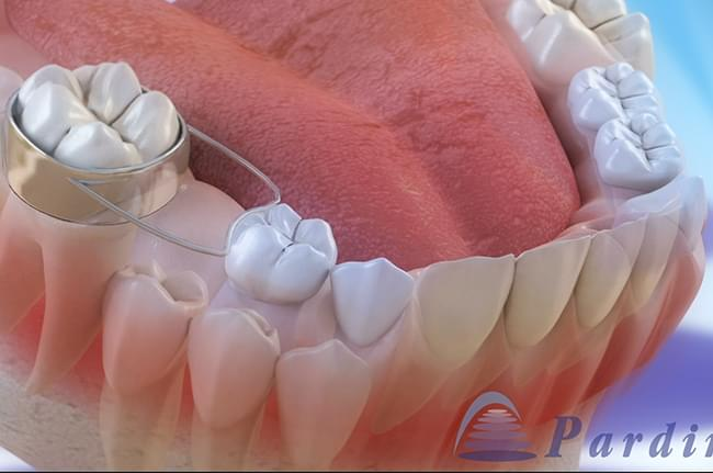 3D video on the problems caused by the premature fall of teeth and the use of space maintainers to avoid these complications.