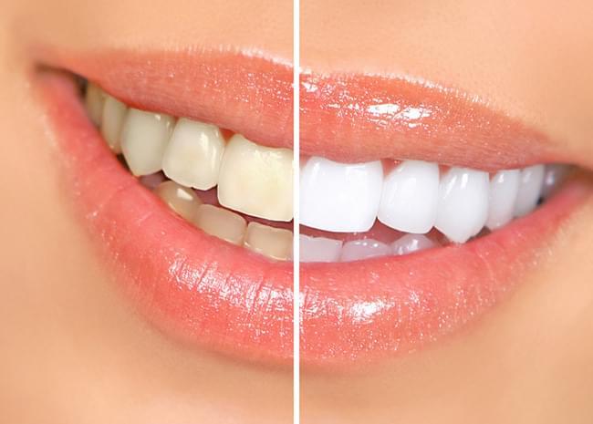 Tener unos dientes blancos es uno de los signos de belleza en la cultura actual. En esta publicación encontrarás toda la información necesaria sobre el blanqueamiento dental