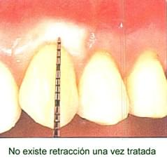 No existe retracci�n