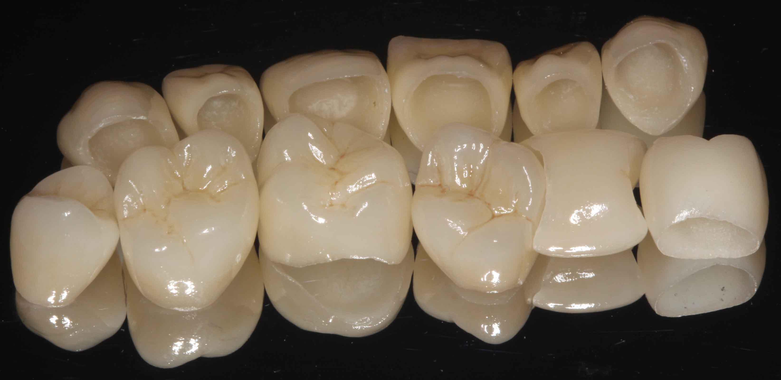 Est tica dental en a coru a cl nica dental pardi as for Marcas de vajillas de porcelana