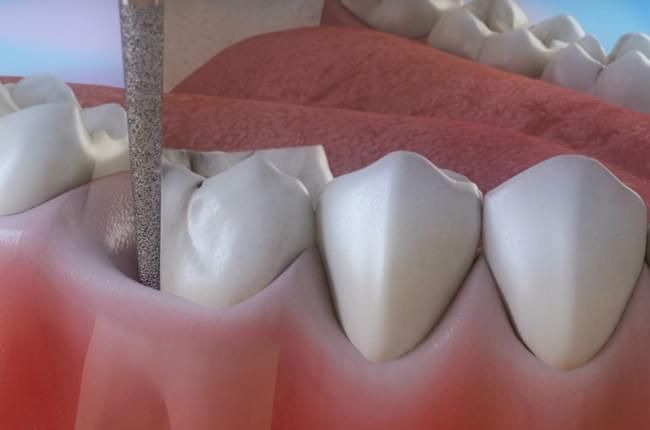 3D Video about endodontics, a dental treatment for deep cavities