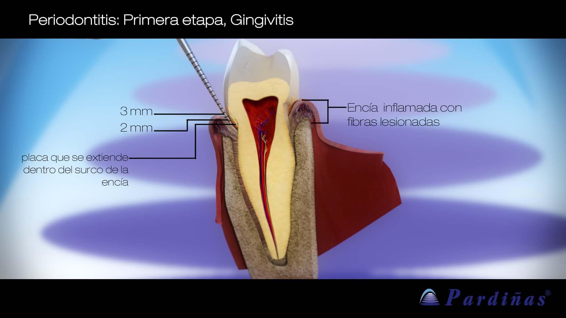 Periodontitis temprana