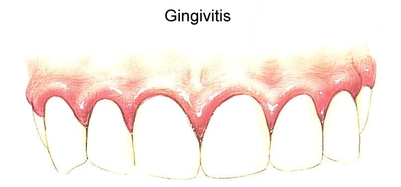 http://www.clinicapardinas.com/upload/images/gingivitis_grande.jpg
