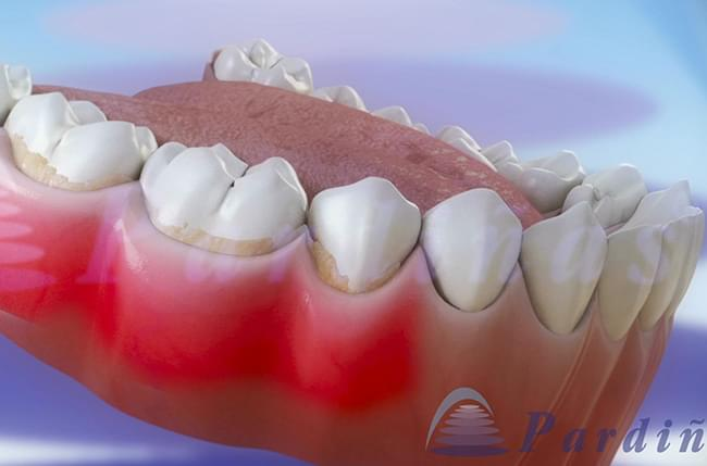 A recent study by the American Medical Association concluded that gum disease could be an indicator of pancreatic cancer