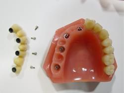 Puente fijo de 7 piezas anclado en 4 implantes