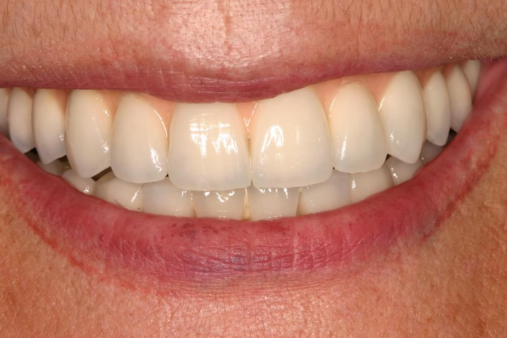 Sobredentadura superior sobre una barra unida a 4 implantes