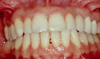 Ortodoncia de adulto: Después del tratamiento
