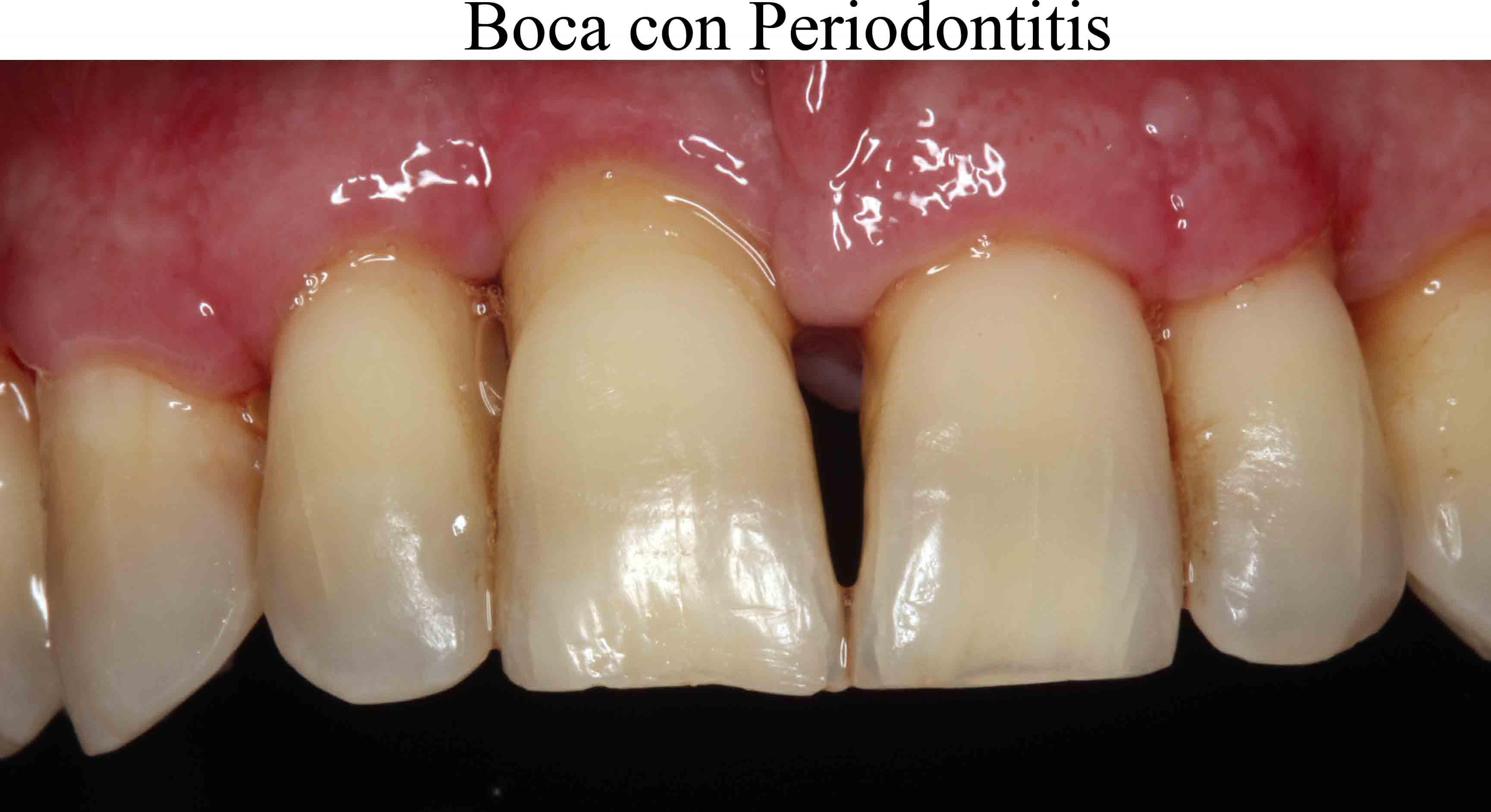 Boca con periodontitis