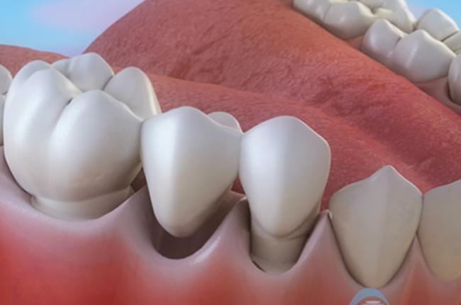 Vídeo 3D sobre a ponte dental de tres pezas, un tratamento odontolóxico para repoñer dentes faltantes