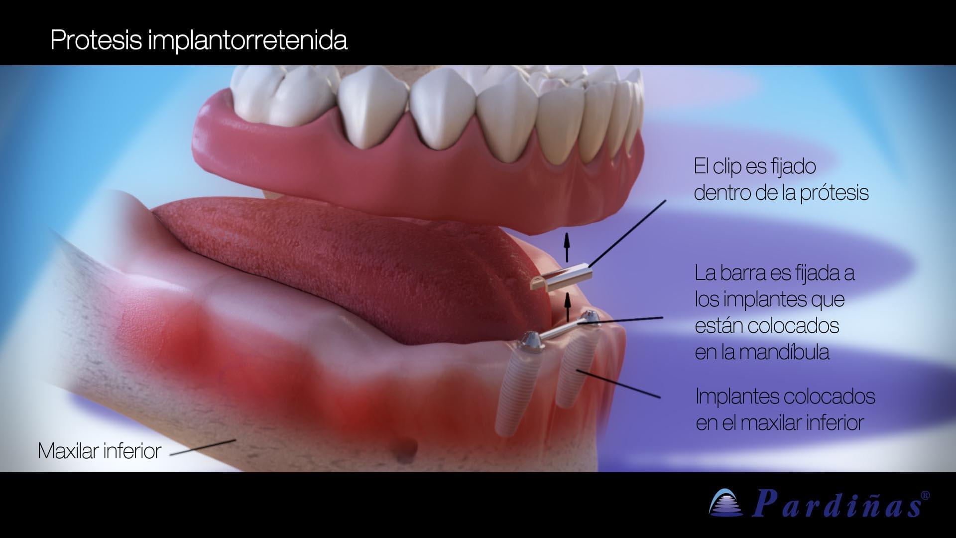 Prótesis Implantorretenida
