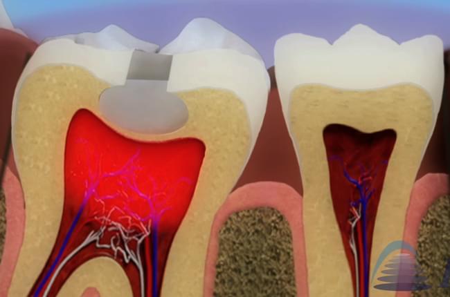 Vídeo 3D sobre la pulpitis y sobre las causas y tratamientos de la inflamación de la pulpa dental