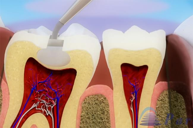 3D video about pulpitis, the causes and treatment of inflammation of the dental pulp