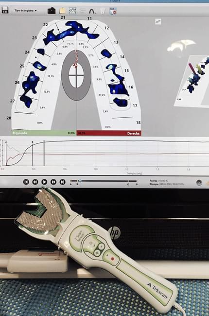 Clínica Pardiñas incorpora la tecnología Tekscan que permite medir la fuerza y los contactos masticatorios del paciente y solucionar problemas derivados de la oclusión