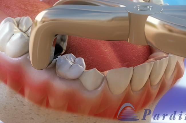 Tooth extraction is a dental procedure performed in clinical conditions where there isn't any other treatment.
