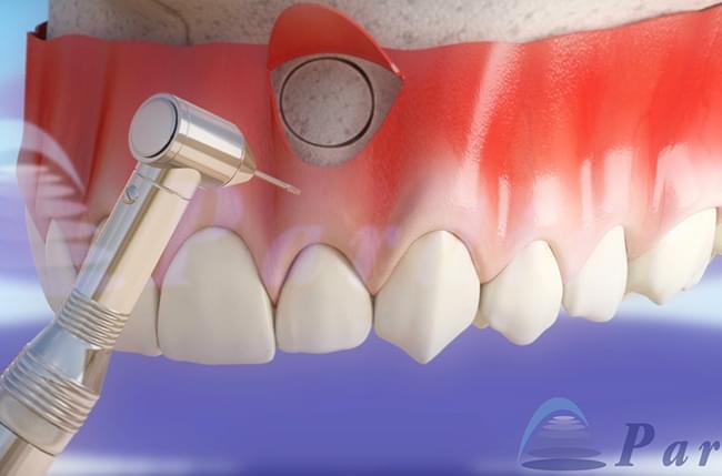 A apicectomía é un tratamento odontolóxico que serve para eliminar unha infección na raíz do dente e de tecidos adxacentes. Neste post explicamos todo sobre a apicectomía.