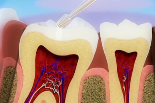 Vídeo 3D la restauración con composite, el tratamiento más común para la caries dental