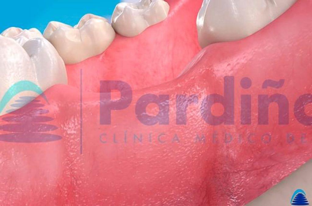 fractura dental rotos